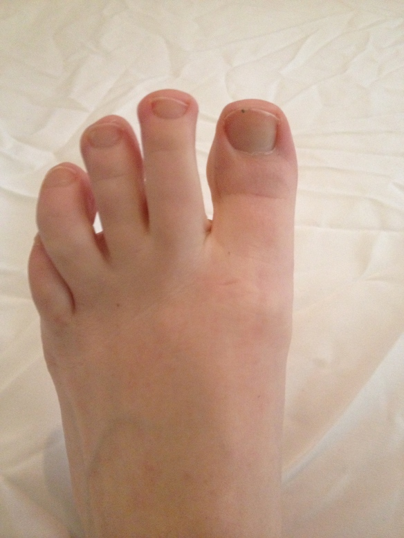 Here is a picture of my foot.
